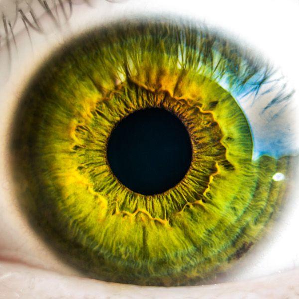 Monofokális látás. Multifokális műlencse-beépítés